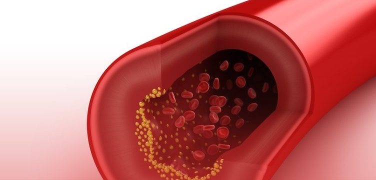 O que é o colesterol e como prevenir?